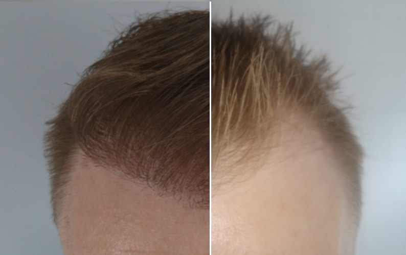 Grow all your hair back at hair transplant clinic