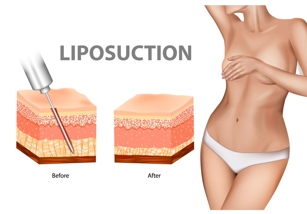 The Best Liposuction In Istanbul Turkey