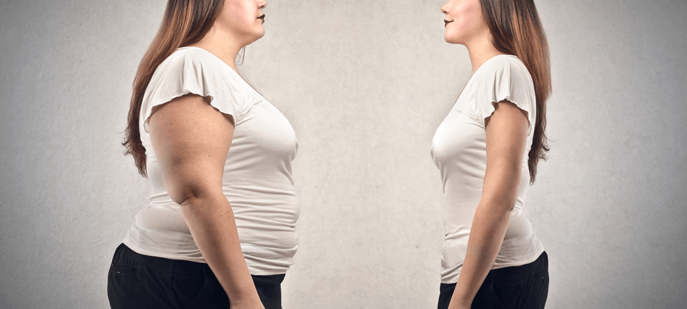 Information about Obesity Surgery in Turkey for you to know