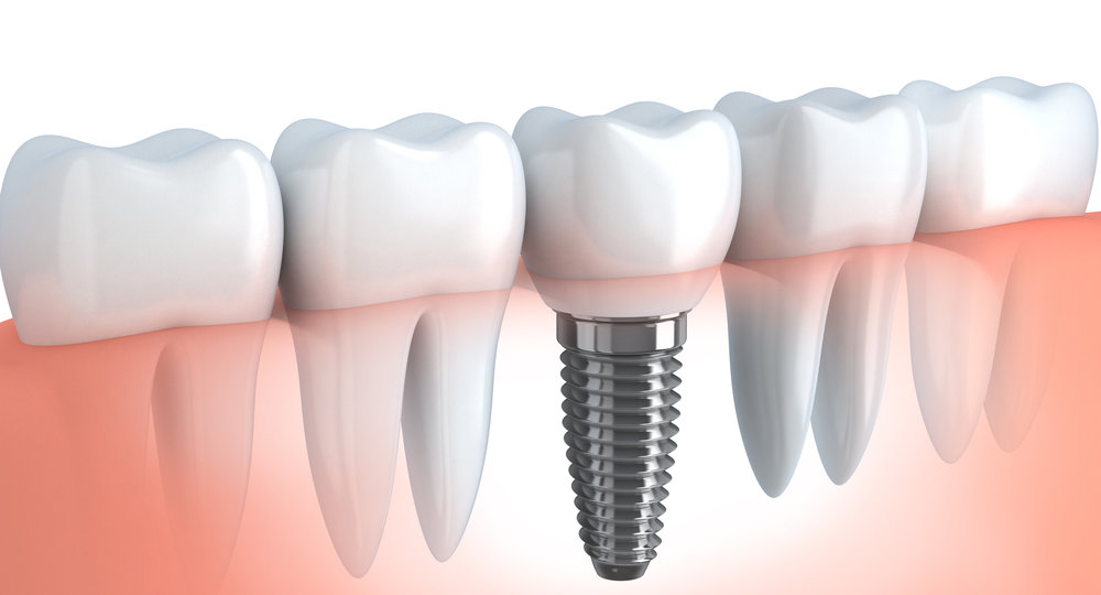 Learn about Implant Odontotheraphy, implant applications, implant applications in Turkey