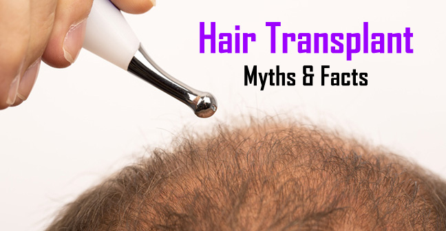 Distinguish Facts from myths about Hair transplant Istanbul