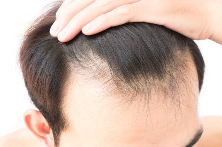 Your guidebook of hair transplant Turkey- Treatment, Expectations & Risks