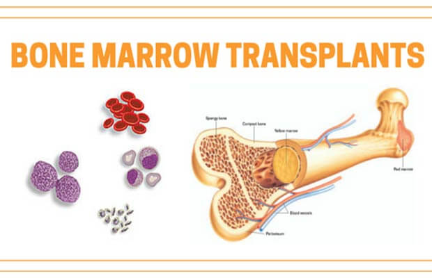 Everything you should know about Bone Marrow Transplant and more